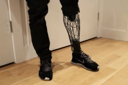 William Root – Exo Prosthetic Leg